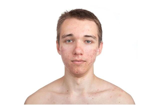 Dermarolling for acne scars